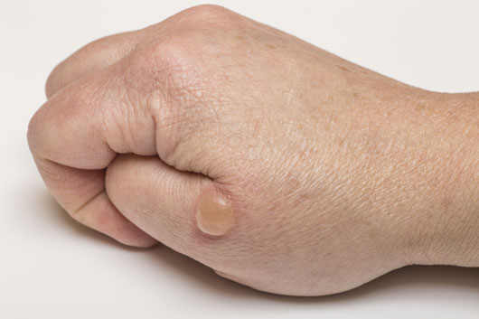 Bubbles on hand: causes and external characteristics. What diseases can be attributed here 26